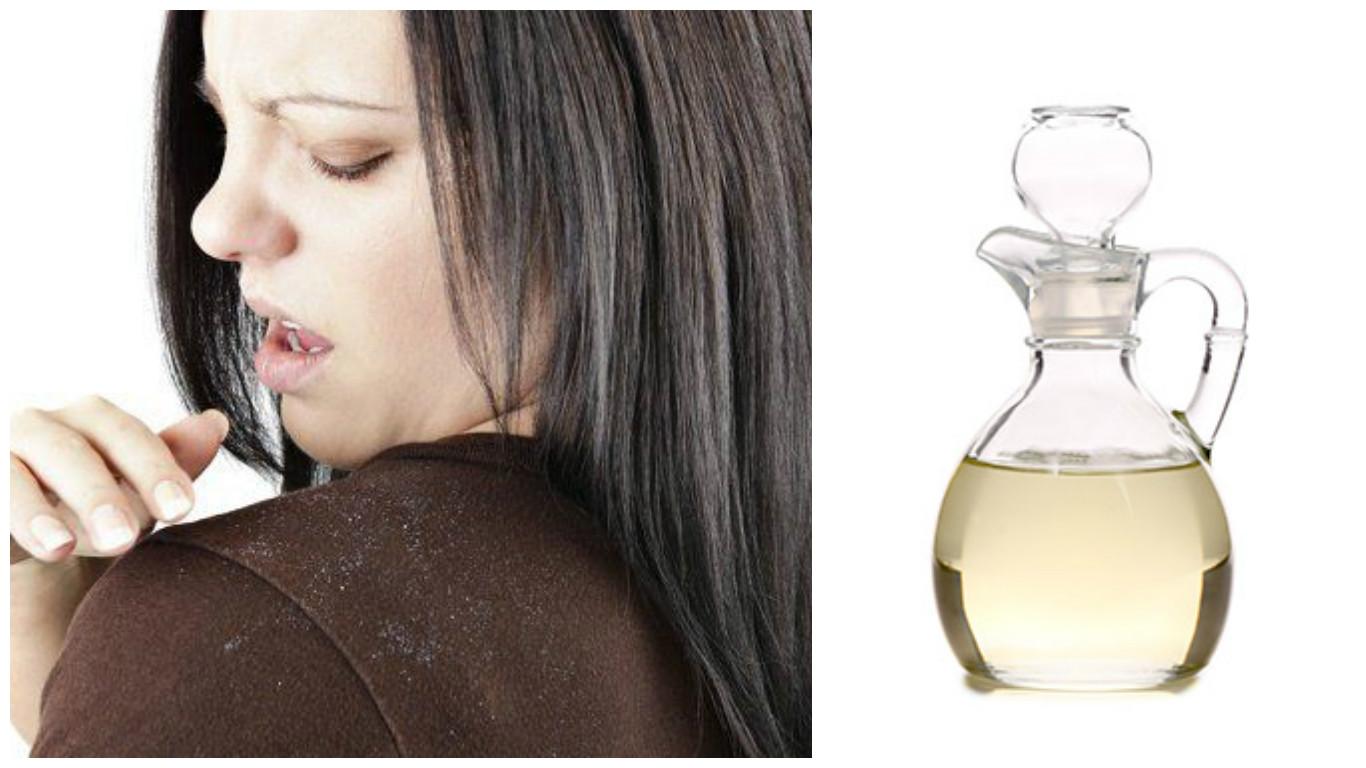 Tratamiento de Vinagre para el cabello