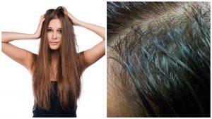 Como cuidar el cabello graso