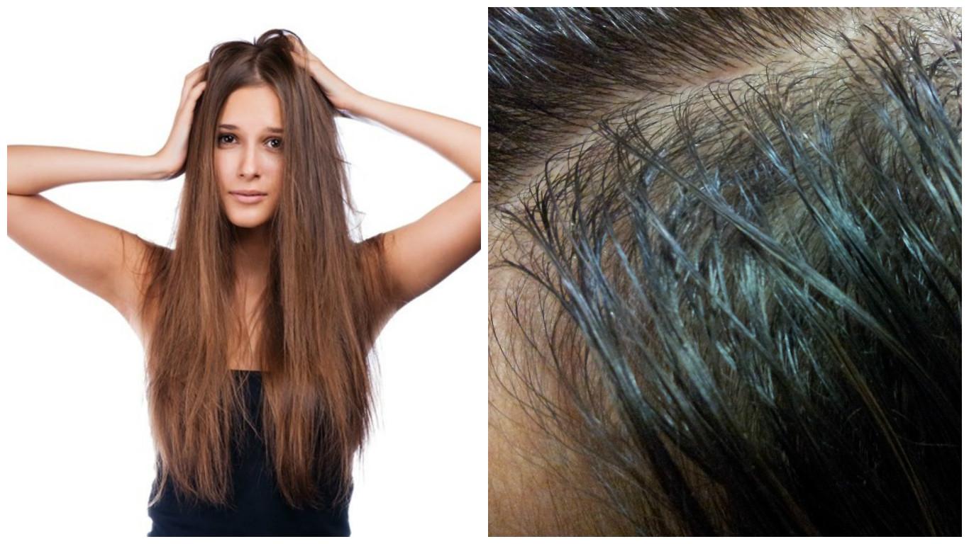 Como cuidar el cabello graso naturalmente