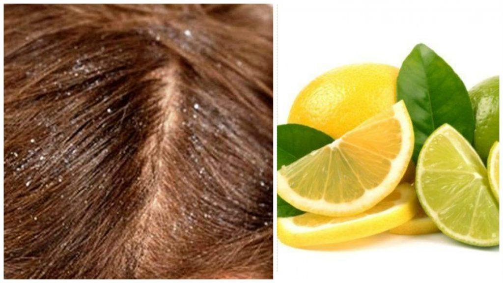 Limon para el pelo caspa
