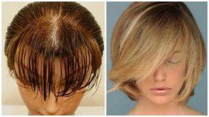 Tratamiento para cabello fino y escaso