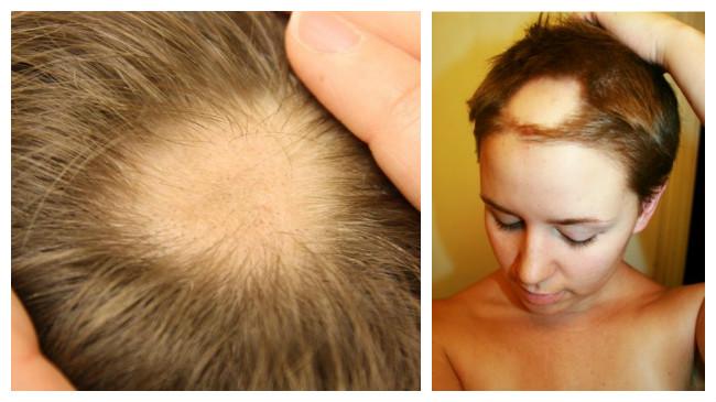 Alopecia Areata Cura