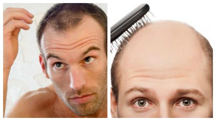 Caída del cabello hombres ¡¡COMO TRATAR!!
