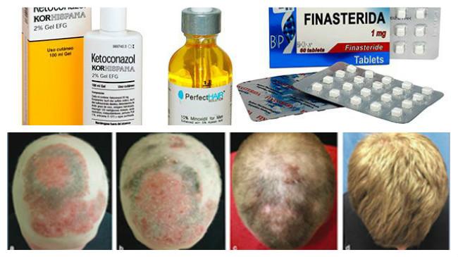 alopecia areata foro