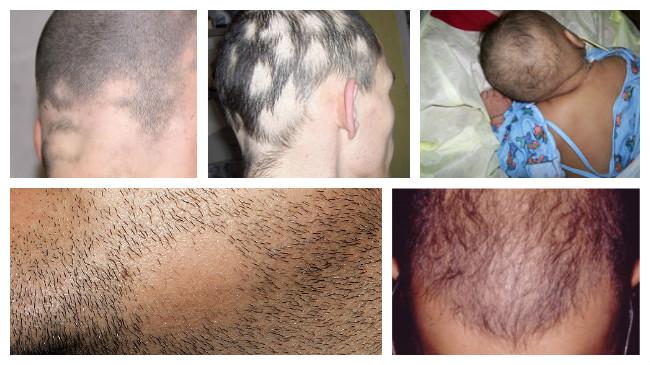 alopecia areata solucion