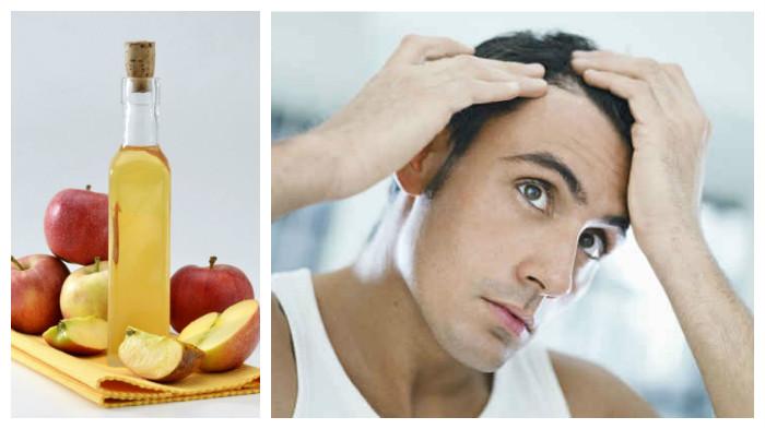 tratamientos para caida del cabello en hombres