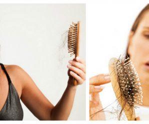 Caída del cabello en MUJERES ¡5 REMEDIOS NATURALES!