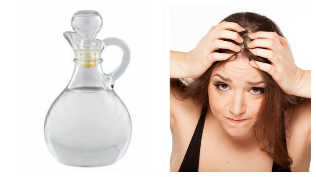 remedios caseros para la caspa del cabello en mujeres