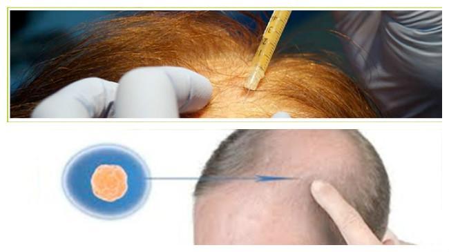 como evitar la caida del cabello en mujeres