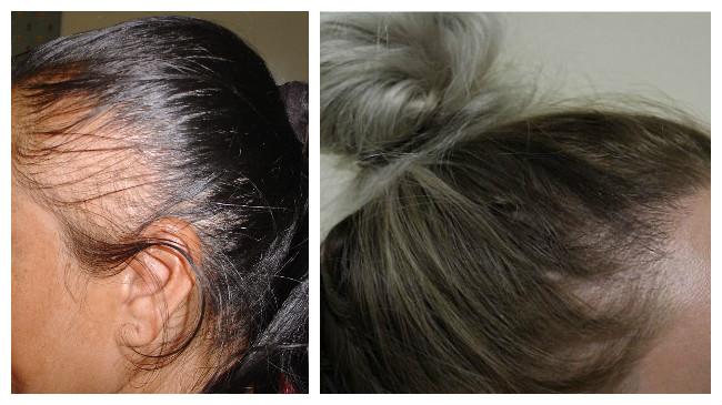tratamiento para cabello maltratado y puntas abiertas
