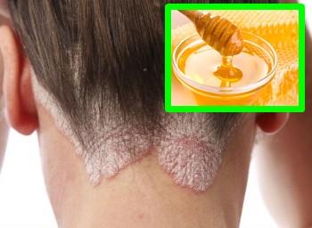 Cómo se quita la seborrea en el cuero cabelludo