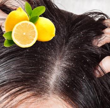 Limón para la caspa
