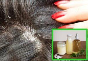 Cómo Hacer Shampoo Casero Para La Caspa